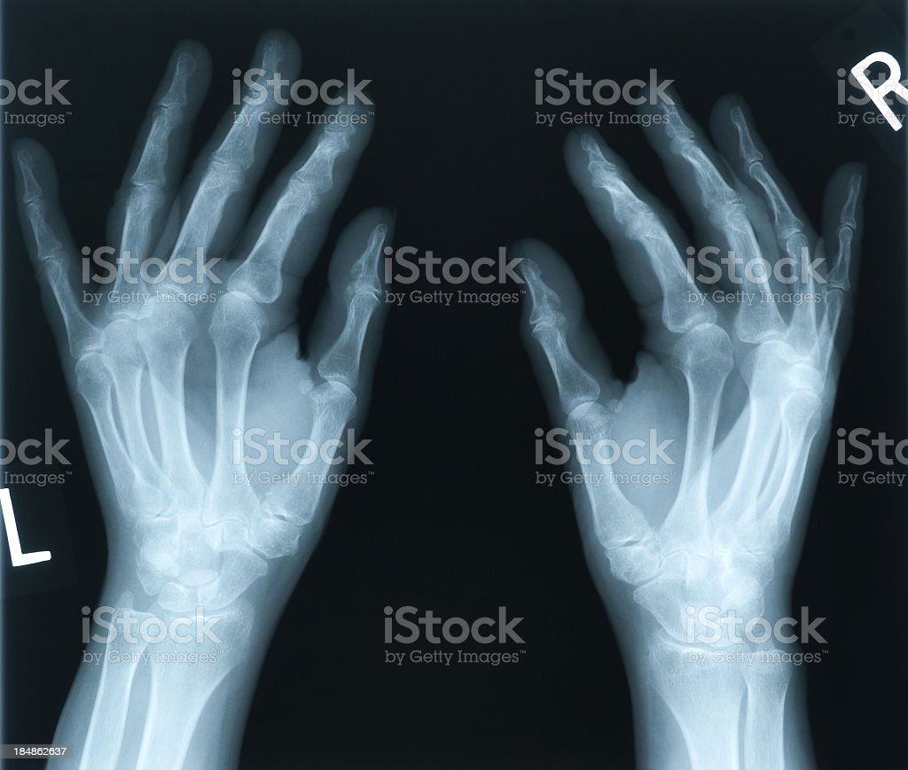 X-ray of 65 year old woman's hands stock photo