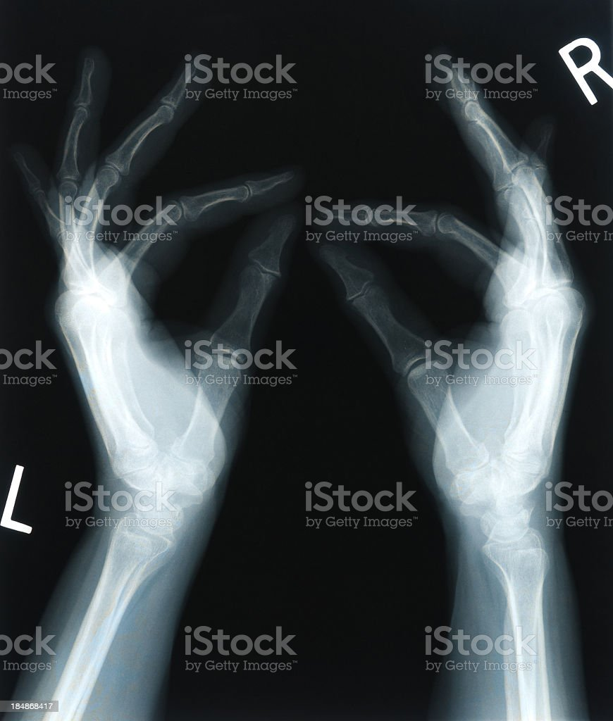 X-ray of 65 year old woman's hands royalty-free stock photo