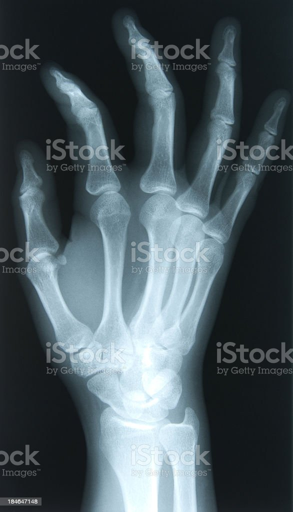 X-ray of a 24 year old females right hand royalty-free stock photo
