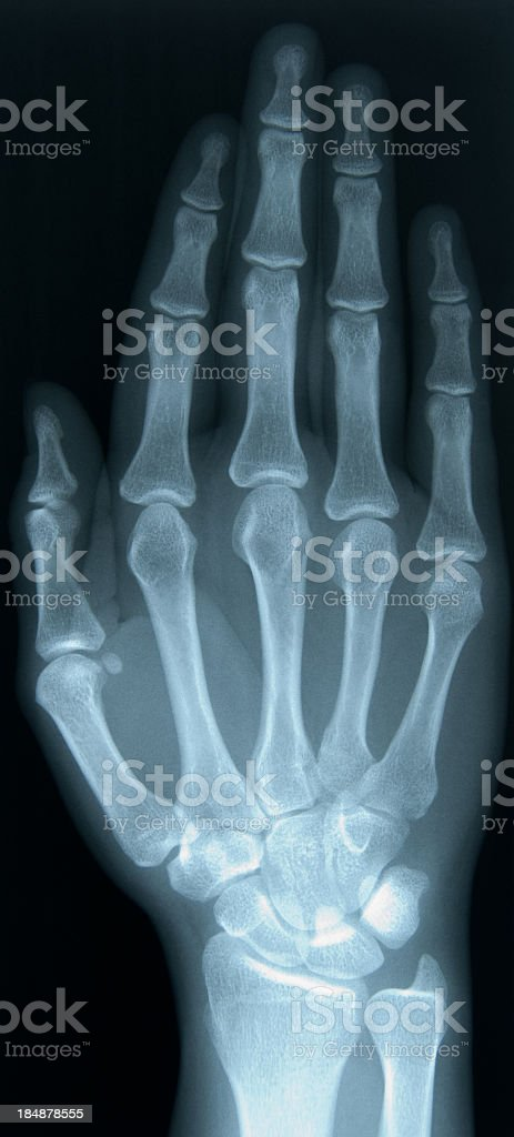 X-ray of a 24 year old female's right hand royalty-free stock photo