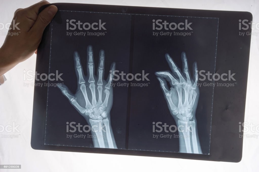 X-ray of a 34 year old males right hand stock photo