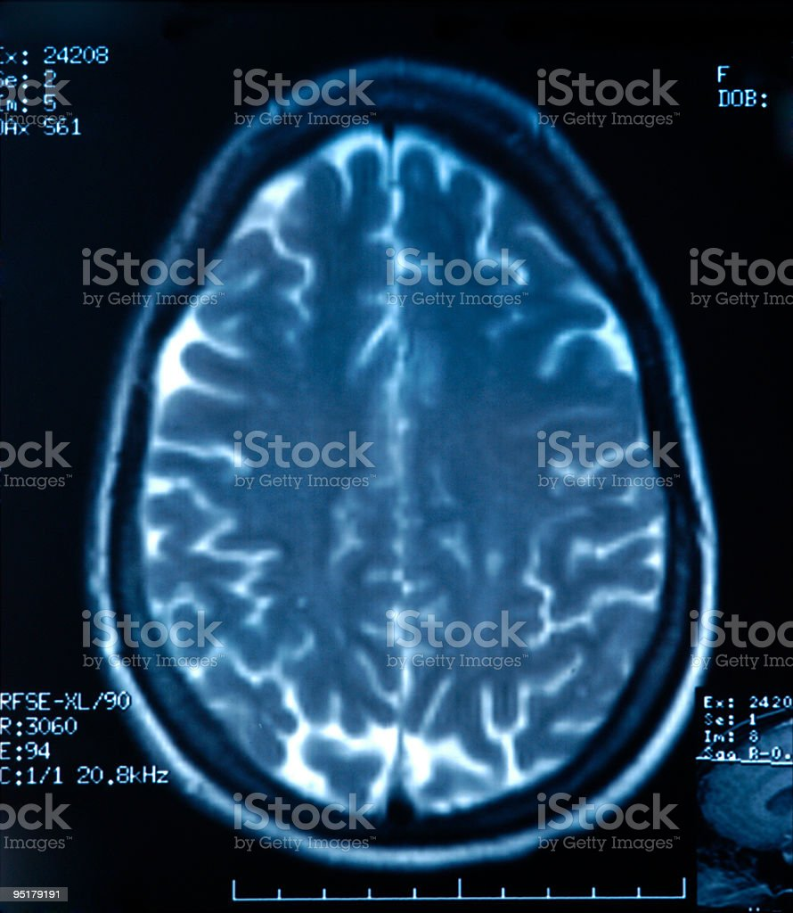 X-Ray of a brain on a black background royalty-free stock photo