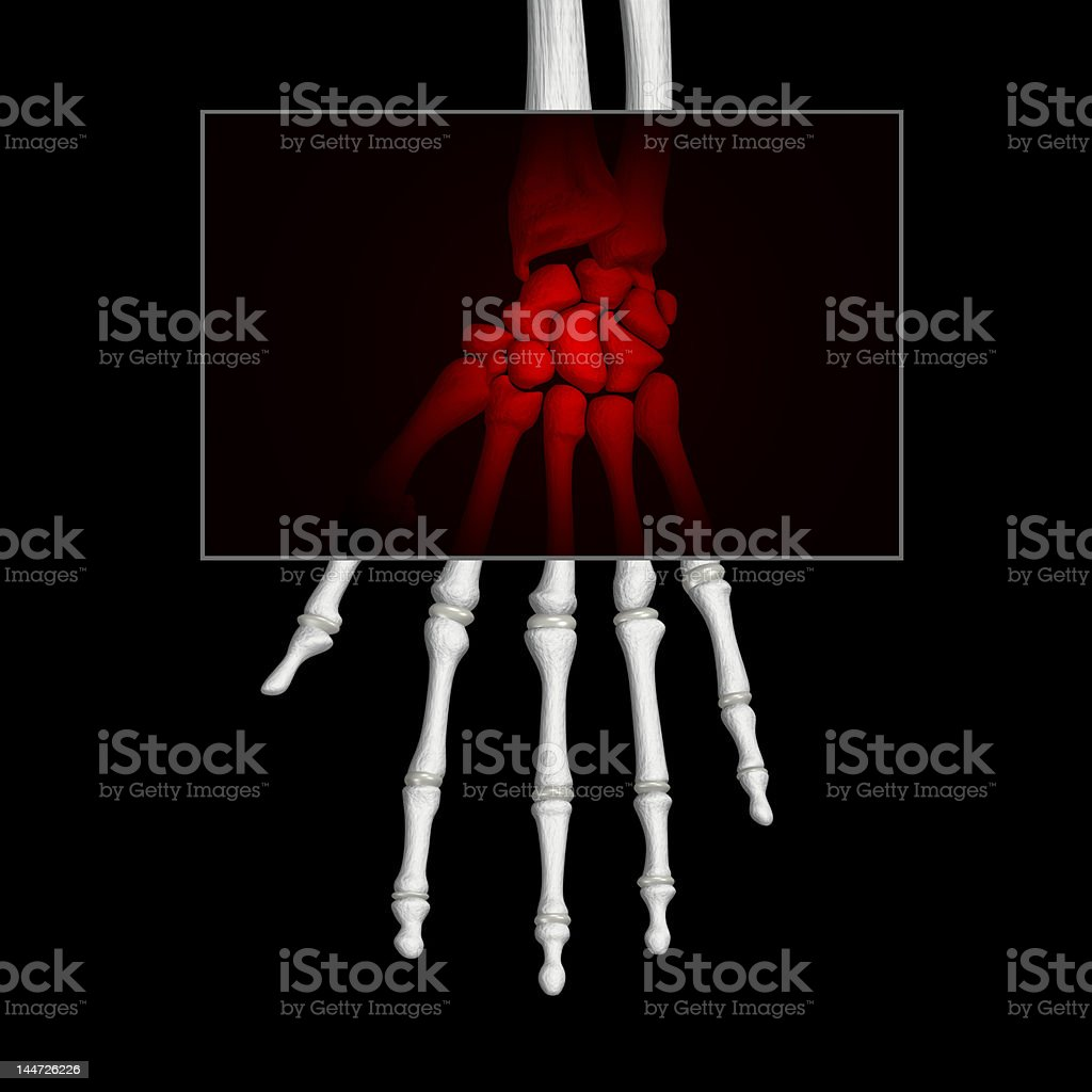 X-ray of a broken wrist in red royalty-free stock photo