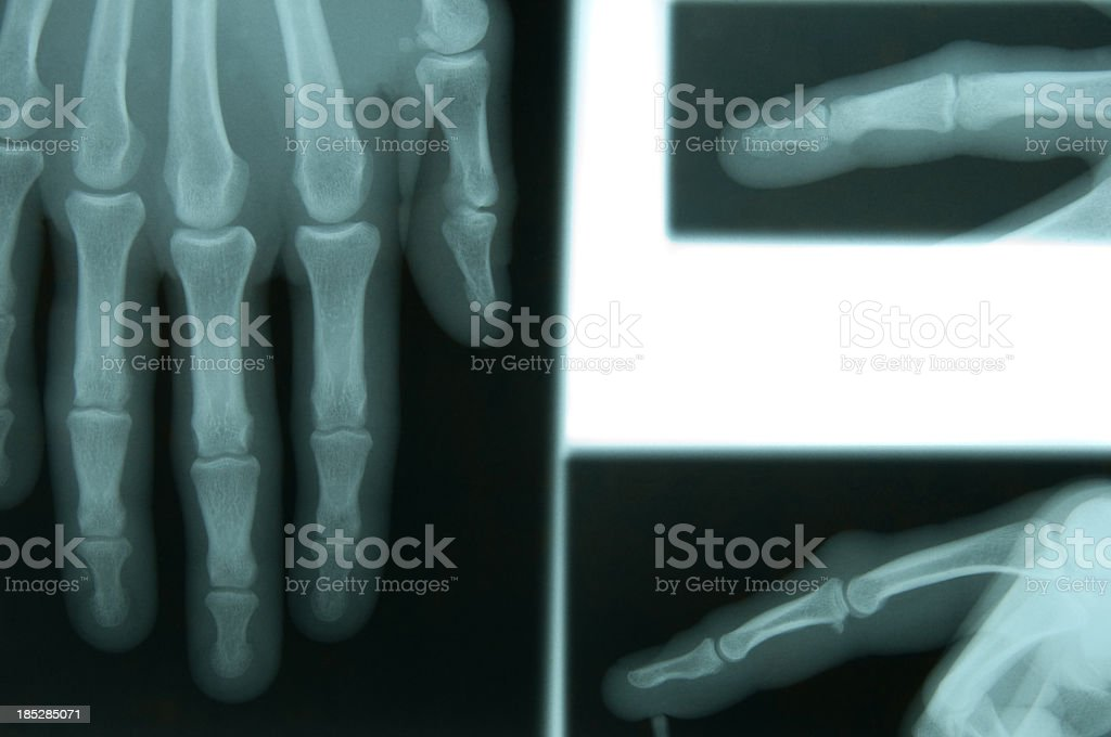 X-ray of a female's hand royalty-free stock photo