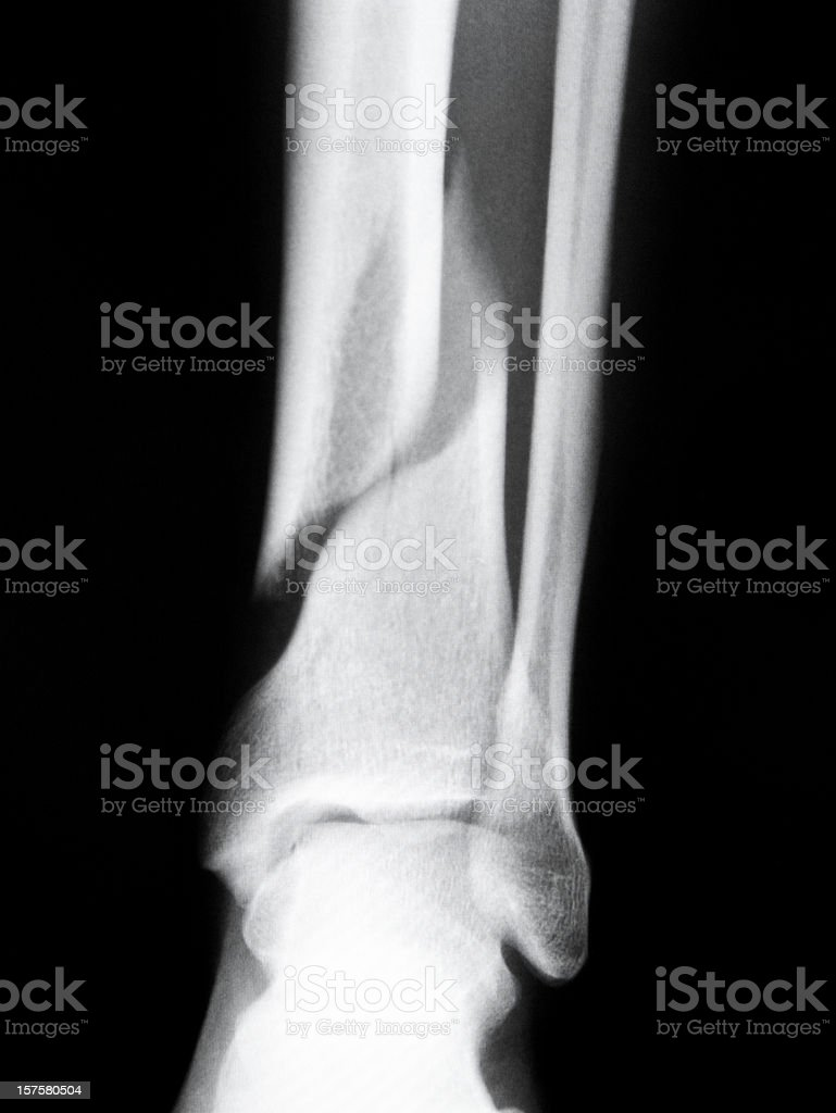 X-ray Of A Fractured Human Bone royalty-free stock photo