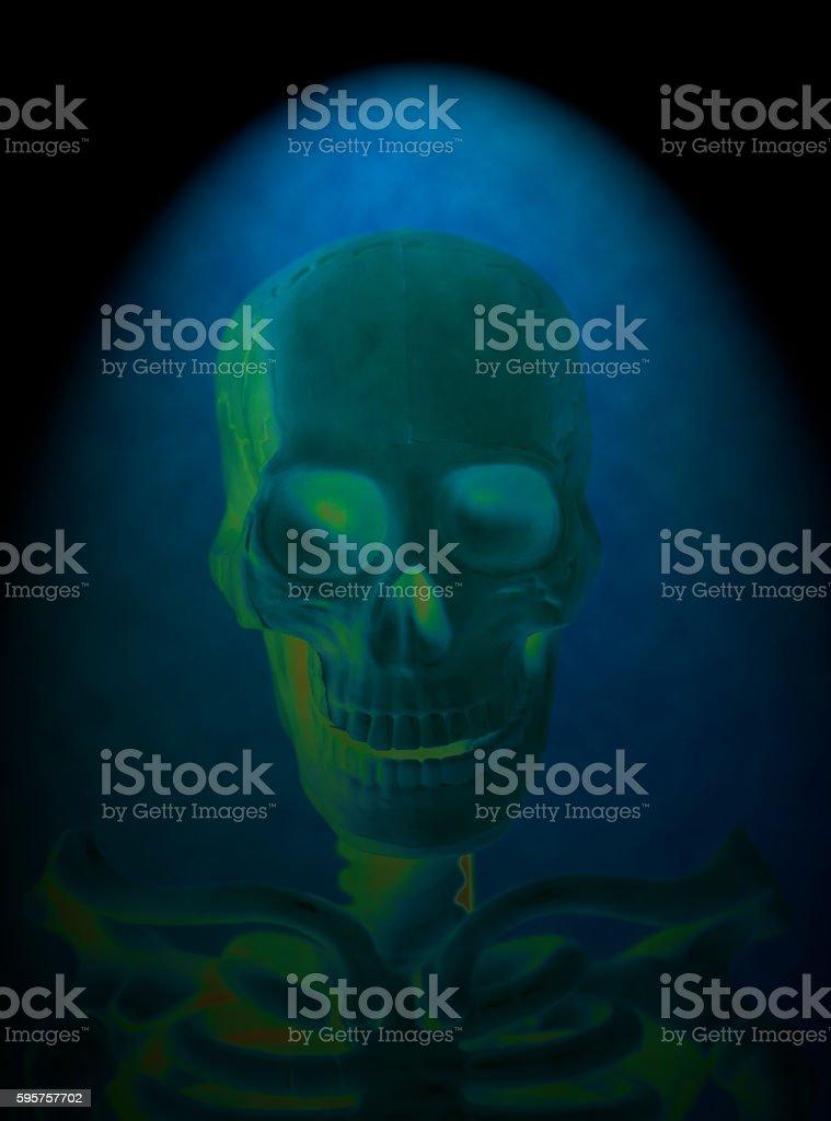 X-ray of a human skull stock photo