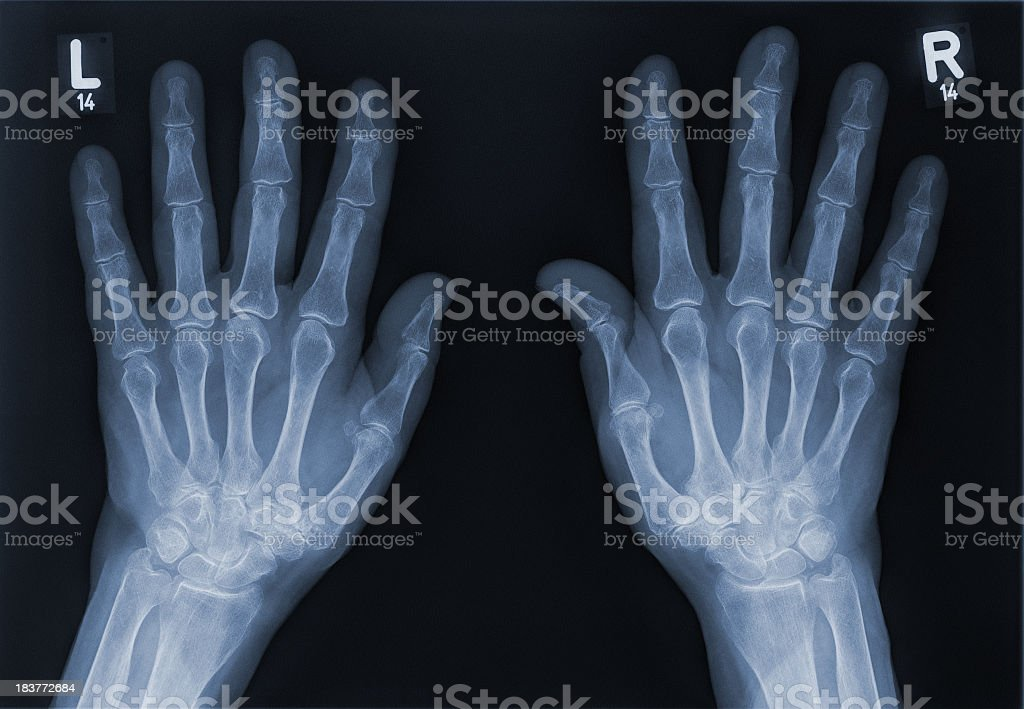 X-ray of a left hand and right hand royalty-free stock photo