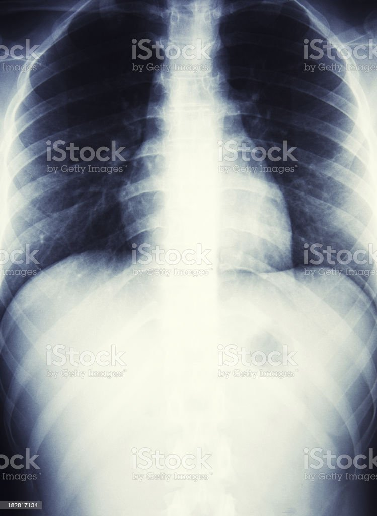 x-ray of a lung and abdomen stock photo