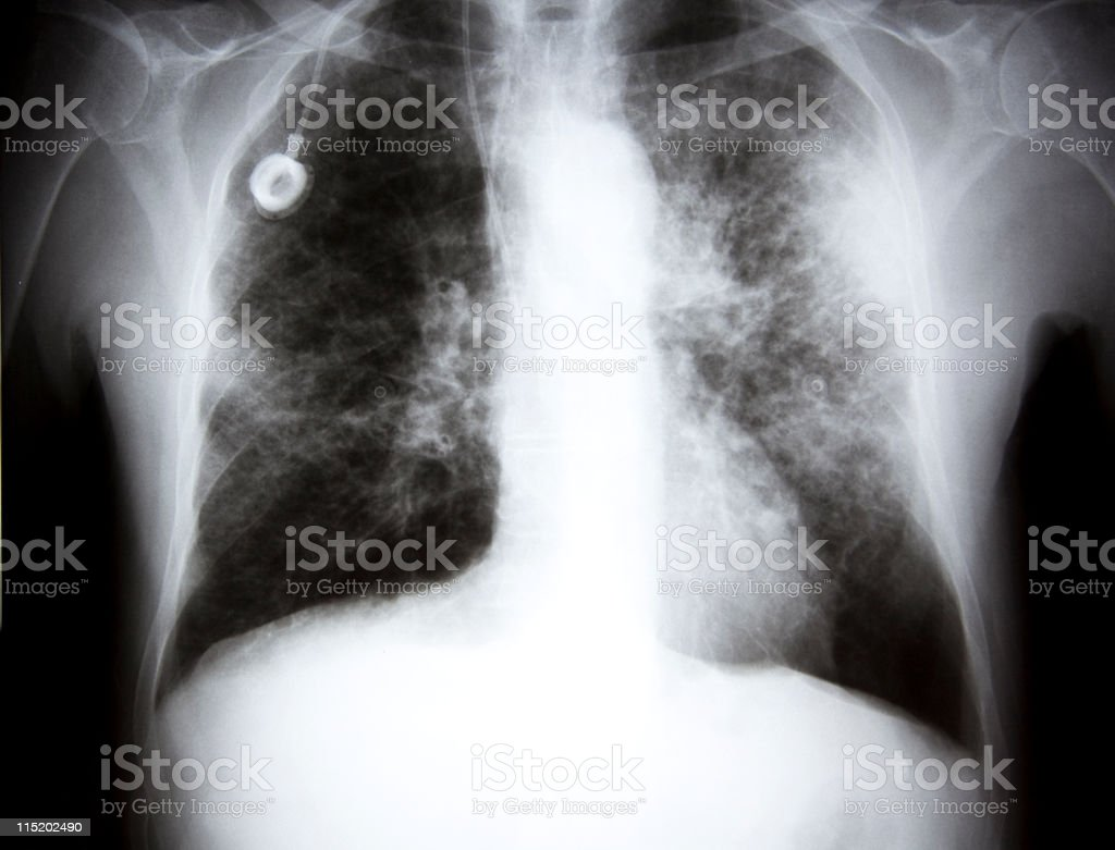 x-ray of a lunge Cancer XXL royalty-free stock photo