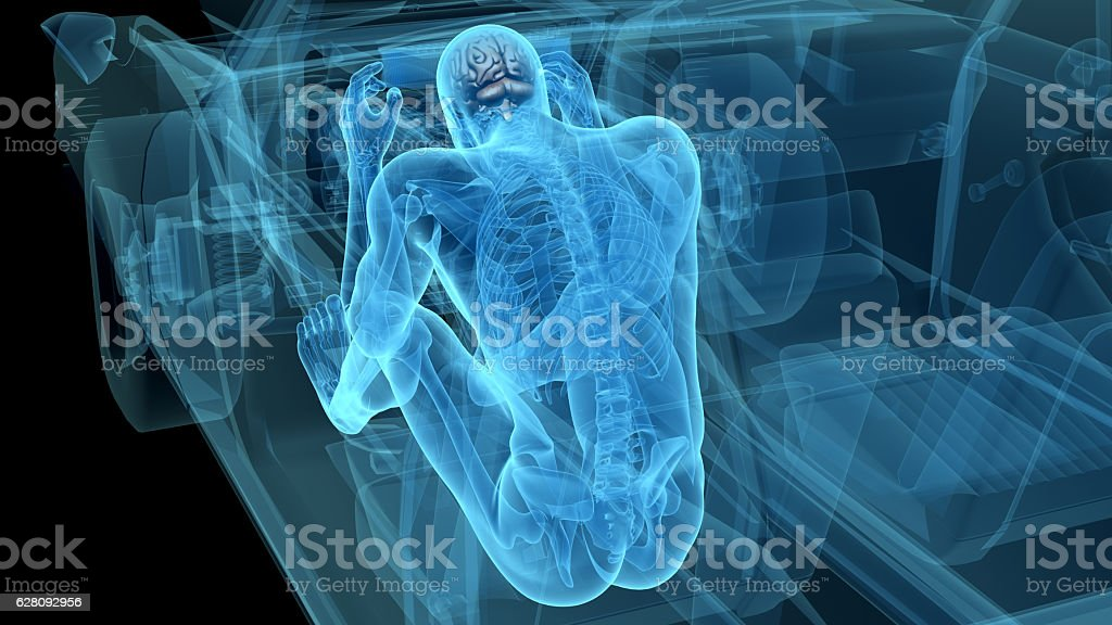 X-ray of a man in a car accident stock photo