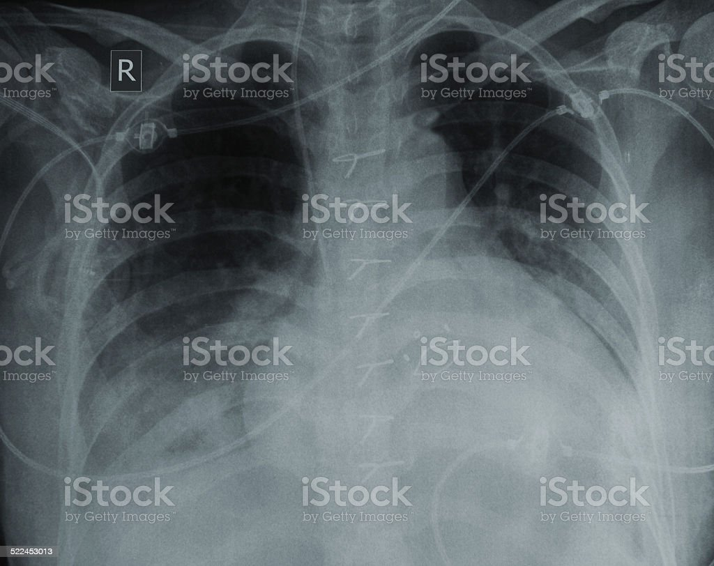 X-ray of a patient with heart disease stock photo