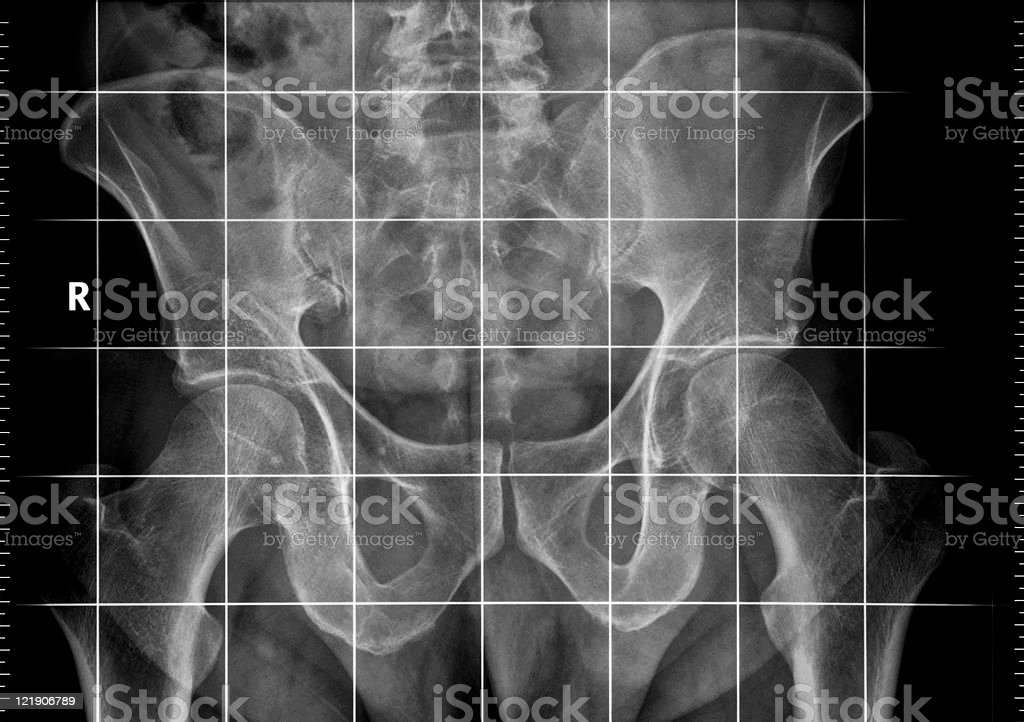 X-ray of a pelvic obliquity measurement royalty-free stock photo