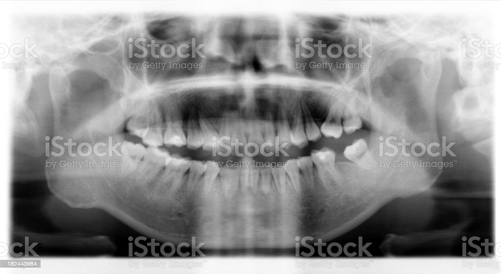 X-Ray of Adult's Teeth & Gums stock photo