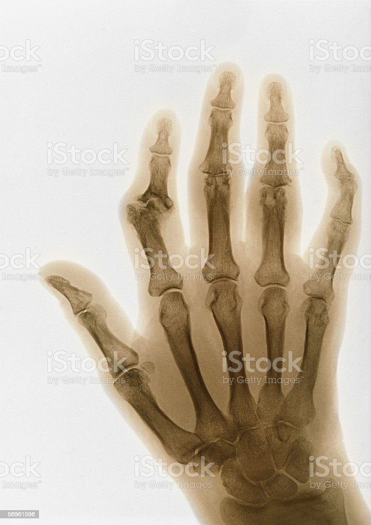 X-ray of arthritic fingers royalty-free stock photo
