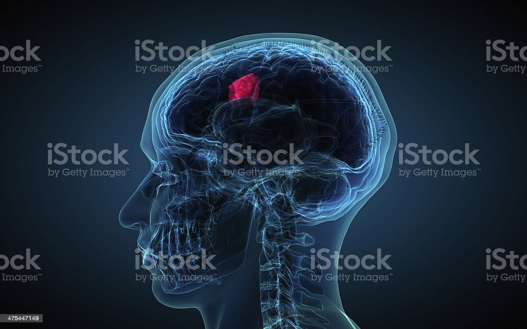 x-ray of brain showing tumor royalty-free stock photo