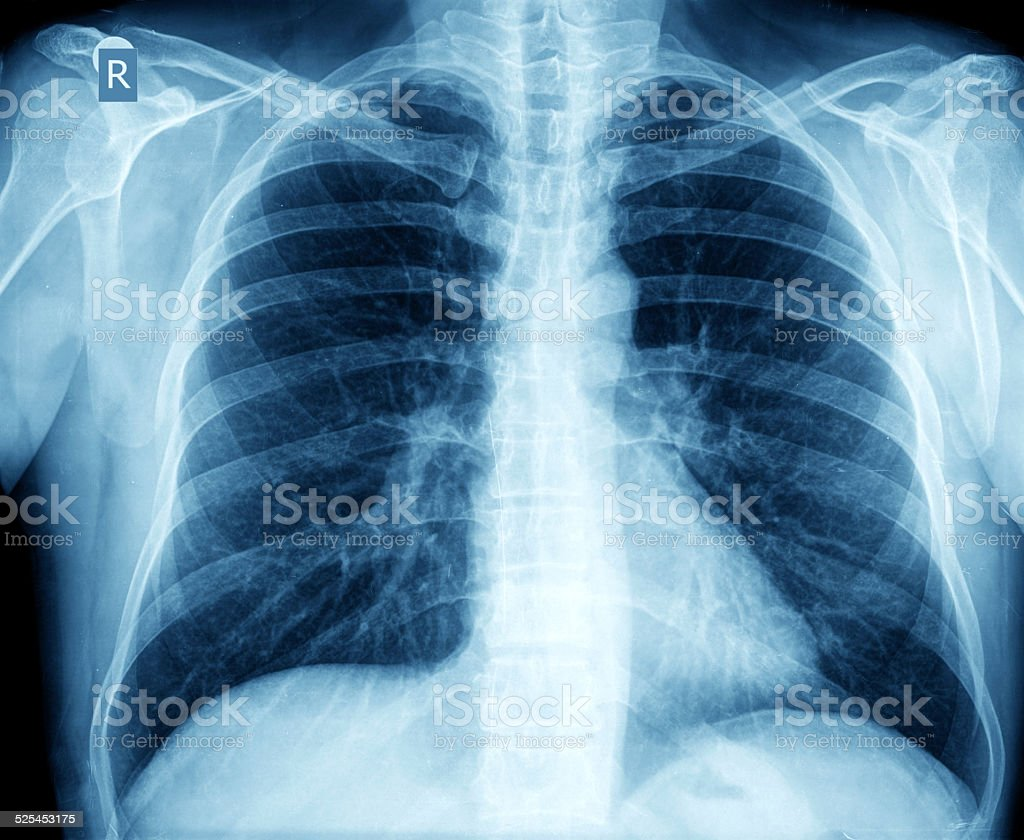 X-ray of chest stock photo
