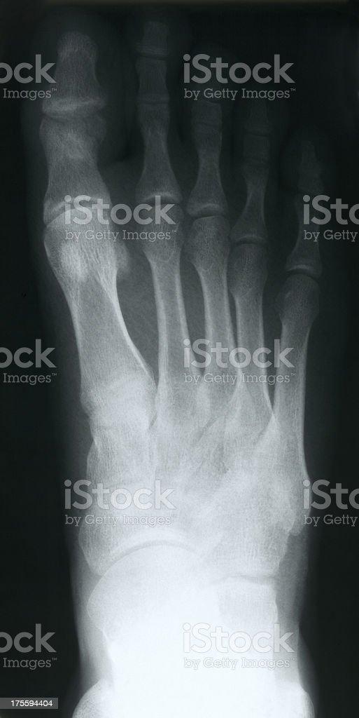 X-ray of foot royalty-free stock photo