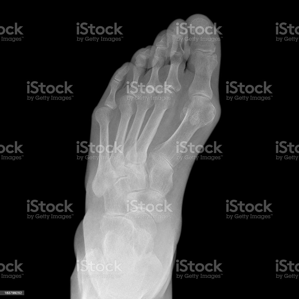 xray of foot showing bunion and hallux valgus deformity stock photo