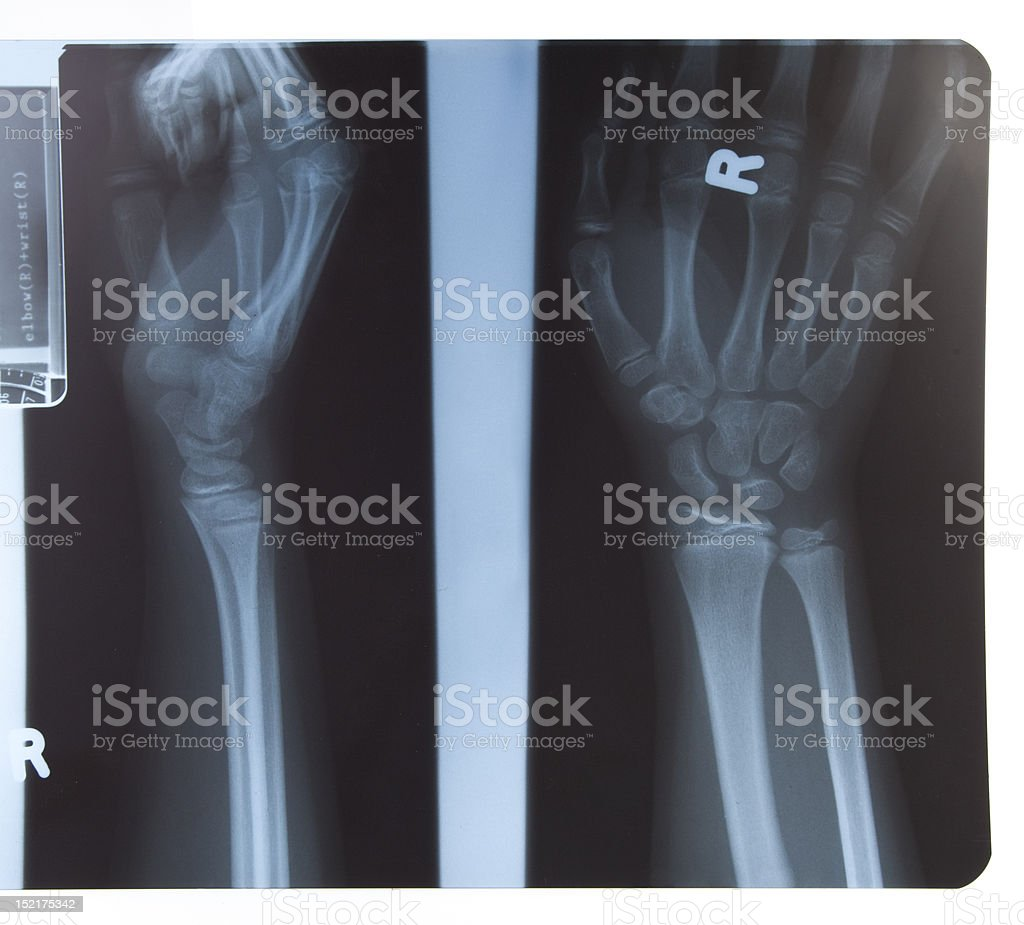 x-ray of hand and forearm royalty-free stock photo