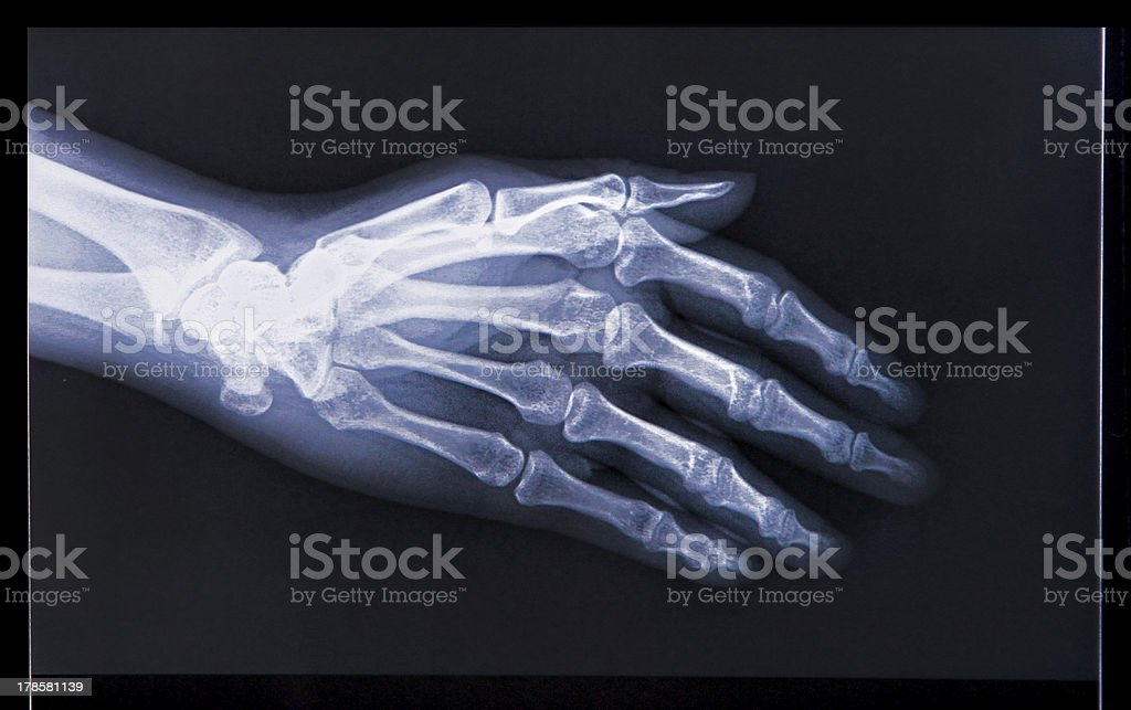 X-ray of Hand stock photo