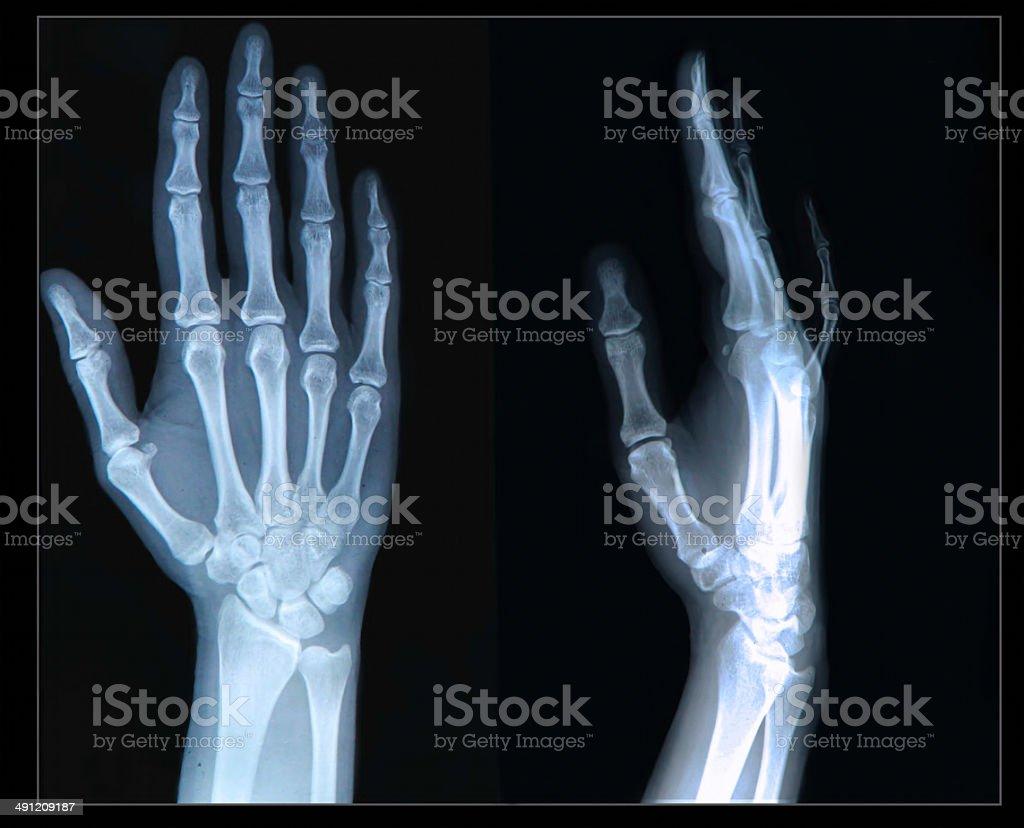 Xray of Hand stock photo