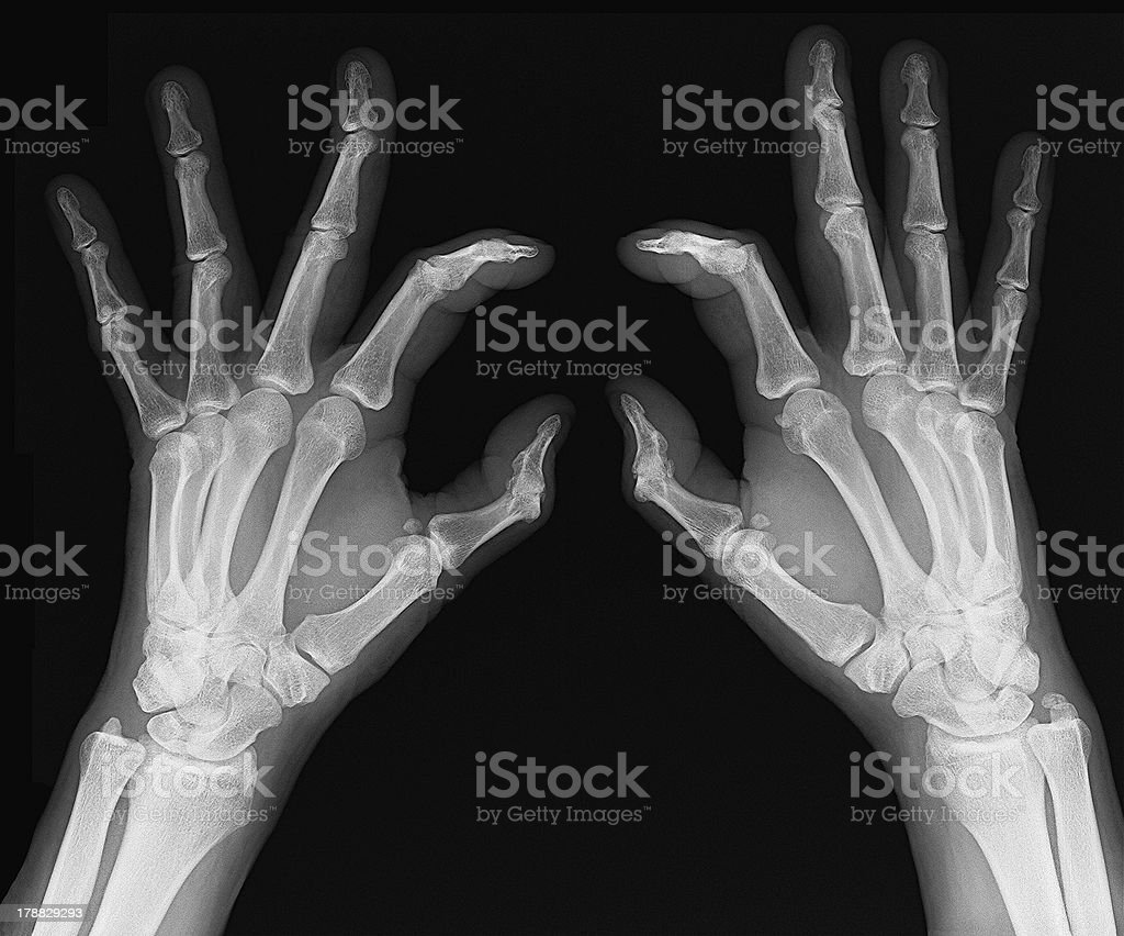 X-ray of hands royalty-free stock photo