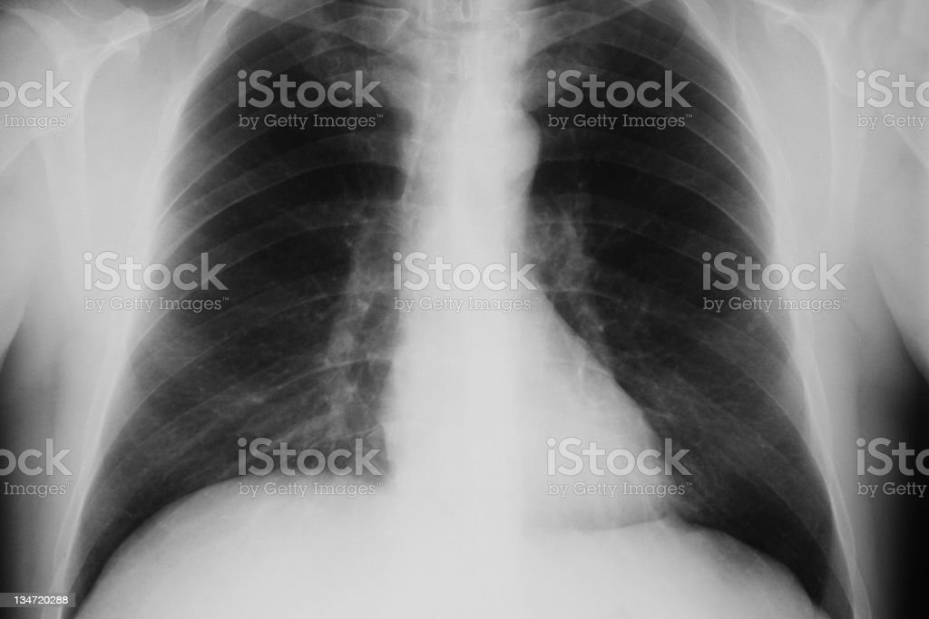 X-ray of human chest royalty-free stock photo