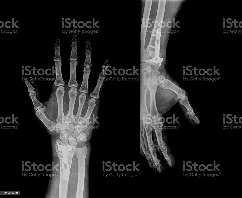 xray of human hand with screw stock photo