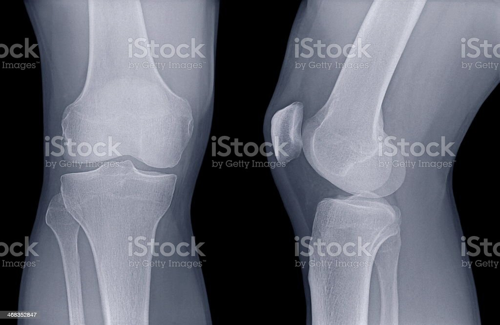 Xray of Human Knee royalty-free stock photo
