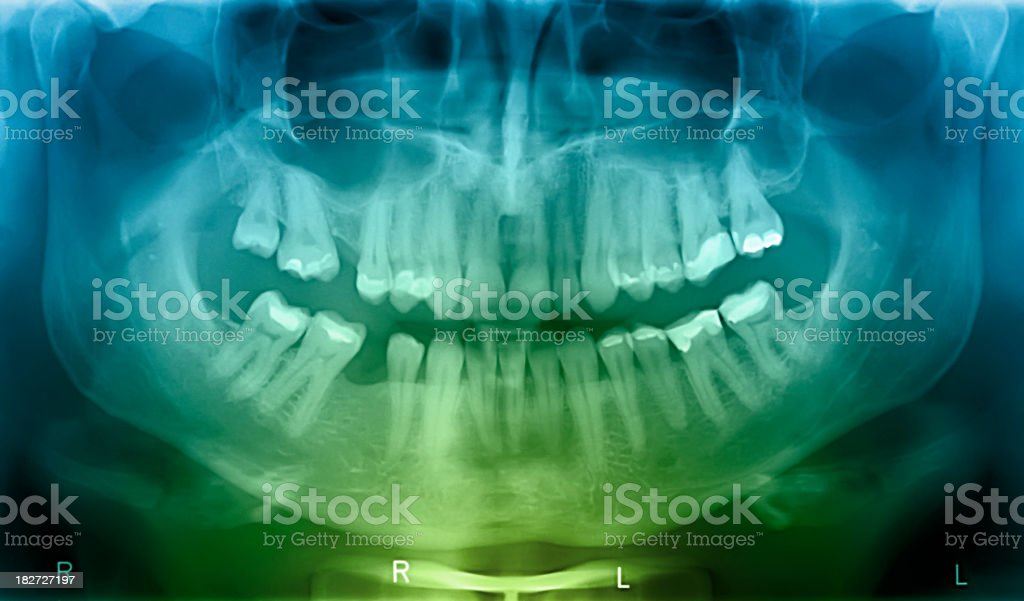 X-ray of human mouth stock photo
