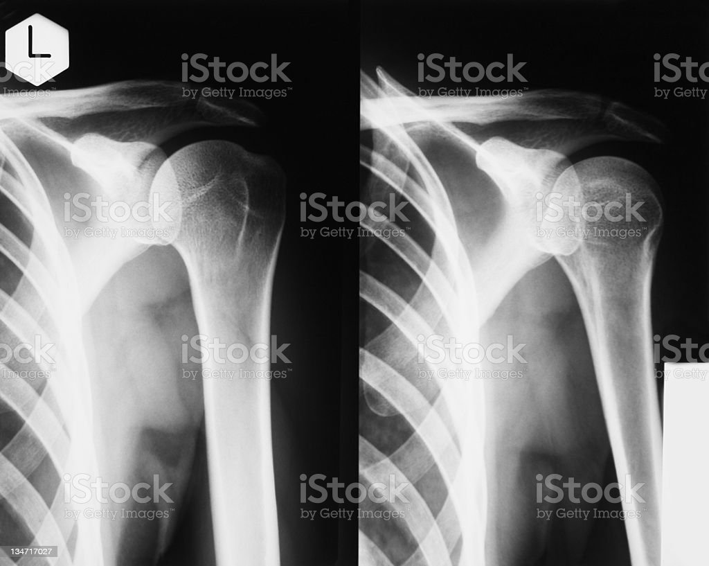 X-ray of human shoulder stock photo