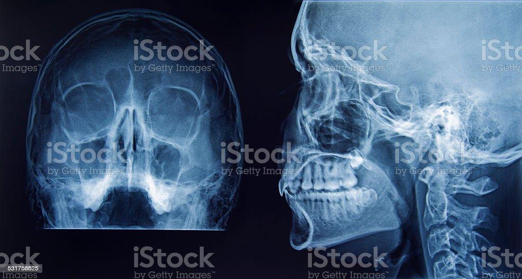X-Ray of human skull stock photo