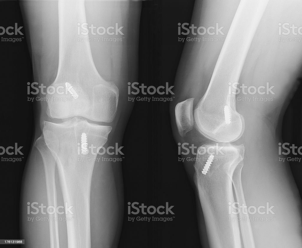x-ray of knee with ACL reconstruction stock photo