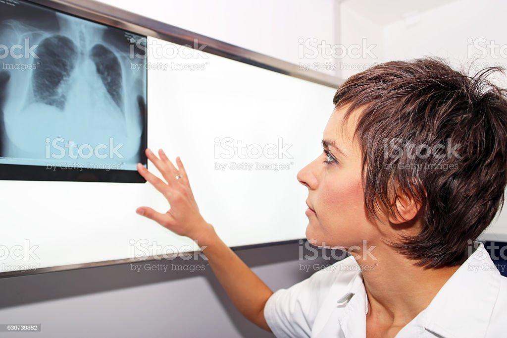 X-ray of lung, pulmonary embolism(PE), pulmonary hypertension, CTEPH stock photo