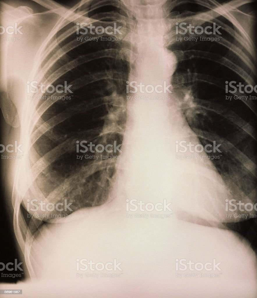 X-ray of mitral valve replacement stock photo