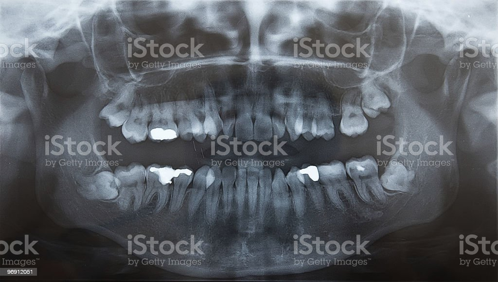 X-Ray of problematic wisdom teeth and fillings royalty-free stock photo