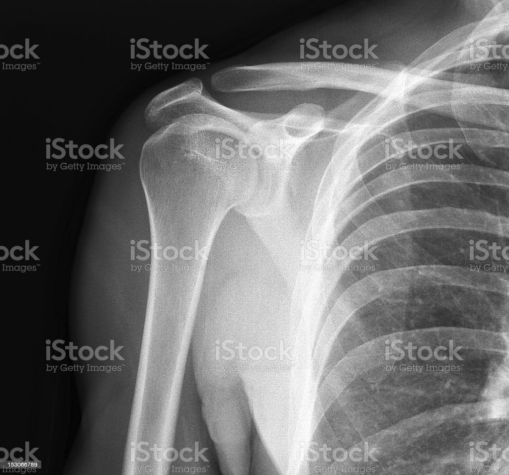 X-ray of shoulder joint stock photo