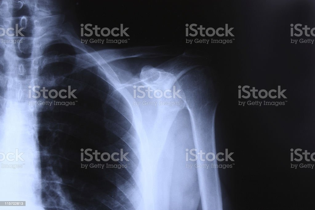 X-ray of shoulder royalty-free stock photo