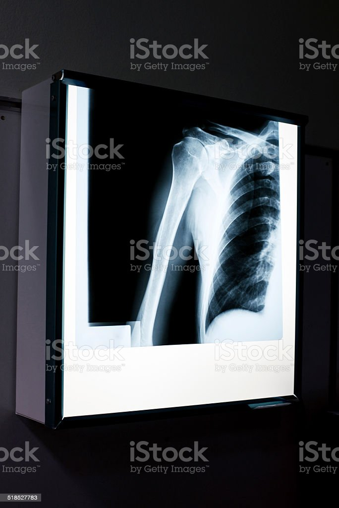 X-ray of shoulder stock photo