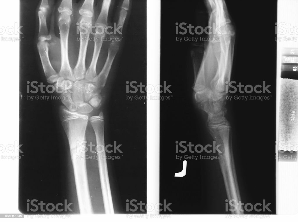 x-ray of the hands royalty-free stock photo