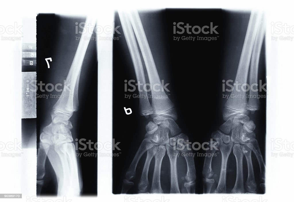 x-ray of the hands stock photo