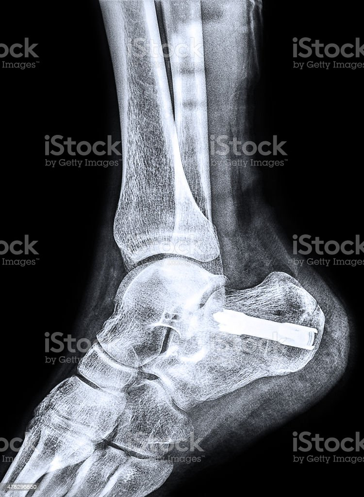 X-ray of the heel after Calcaneus fracture stock photo
