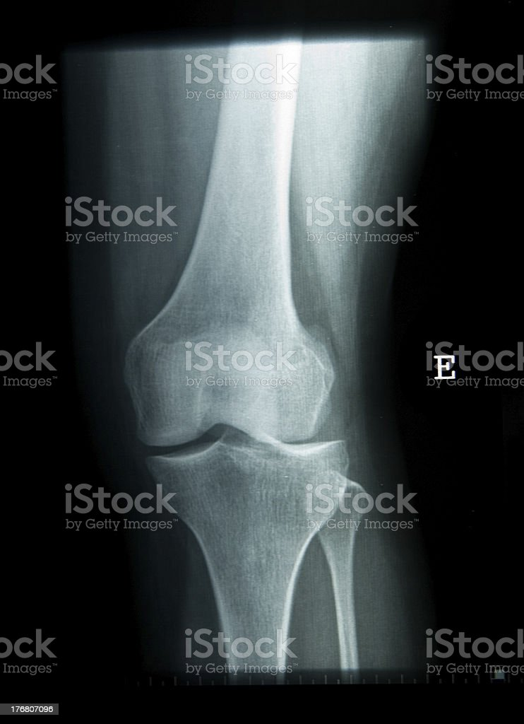 x-ray of the knee, femur and tibia royalty-free stock photo