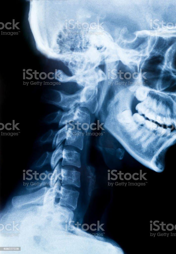X-Ray photo of neck and skull.