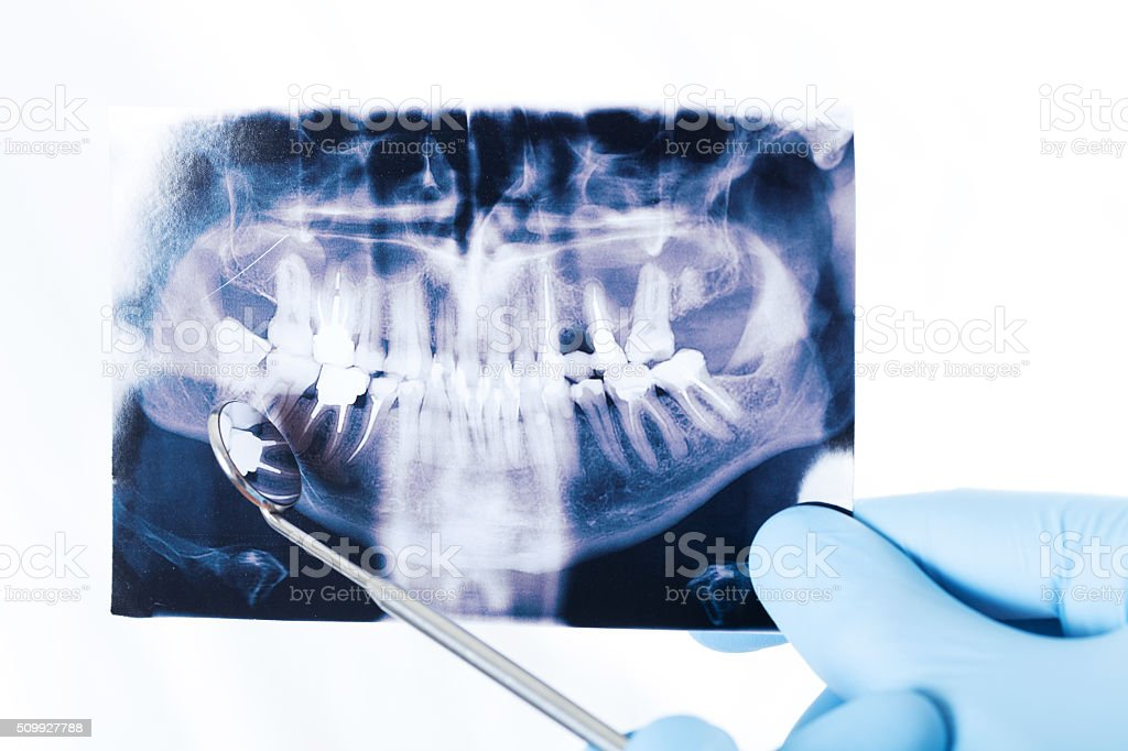 X-ray of the teeth, which keeps the dentist stock photo