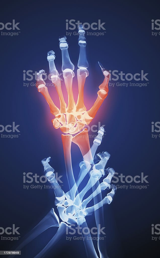 X-ray of two hands and one is red to show the pain royalty-free stock photo