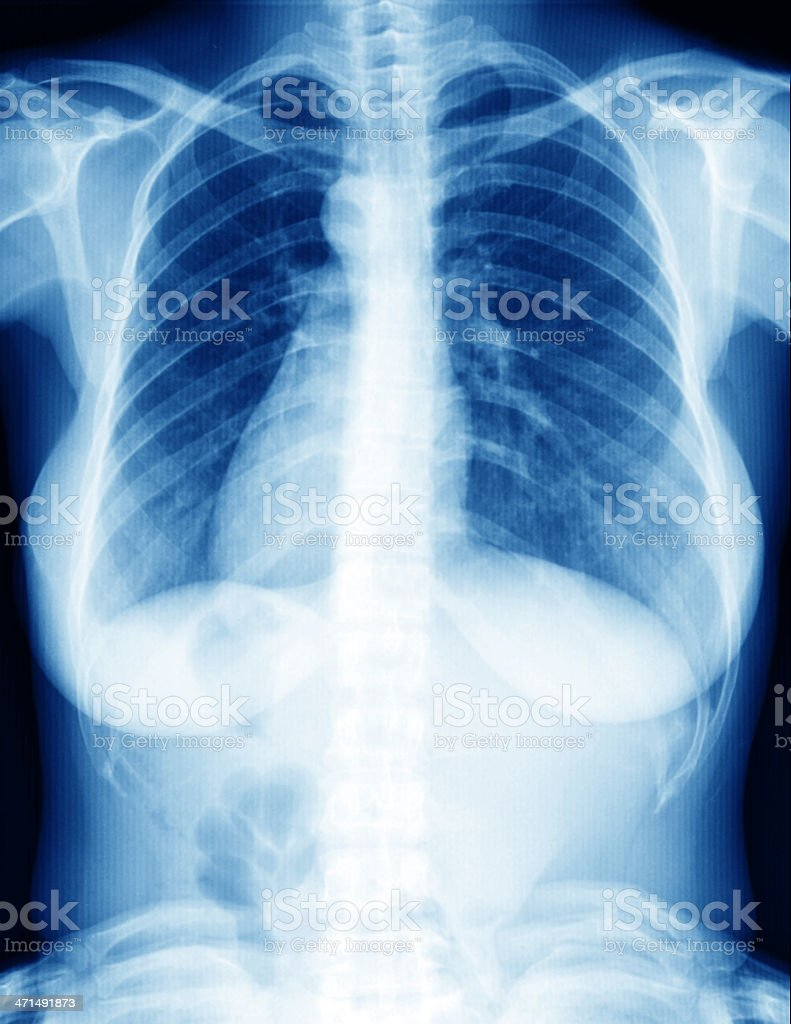 x-ray of woman lung royalty-free stock photo