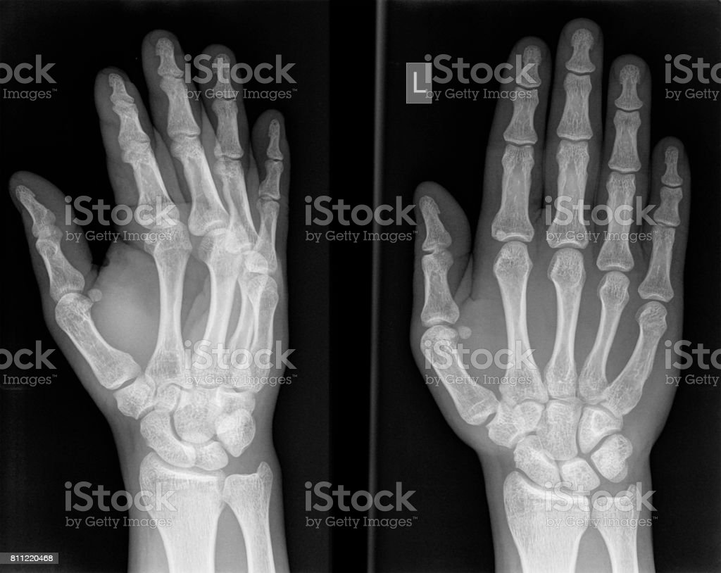 X-ray photo of a hand. stock photo