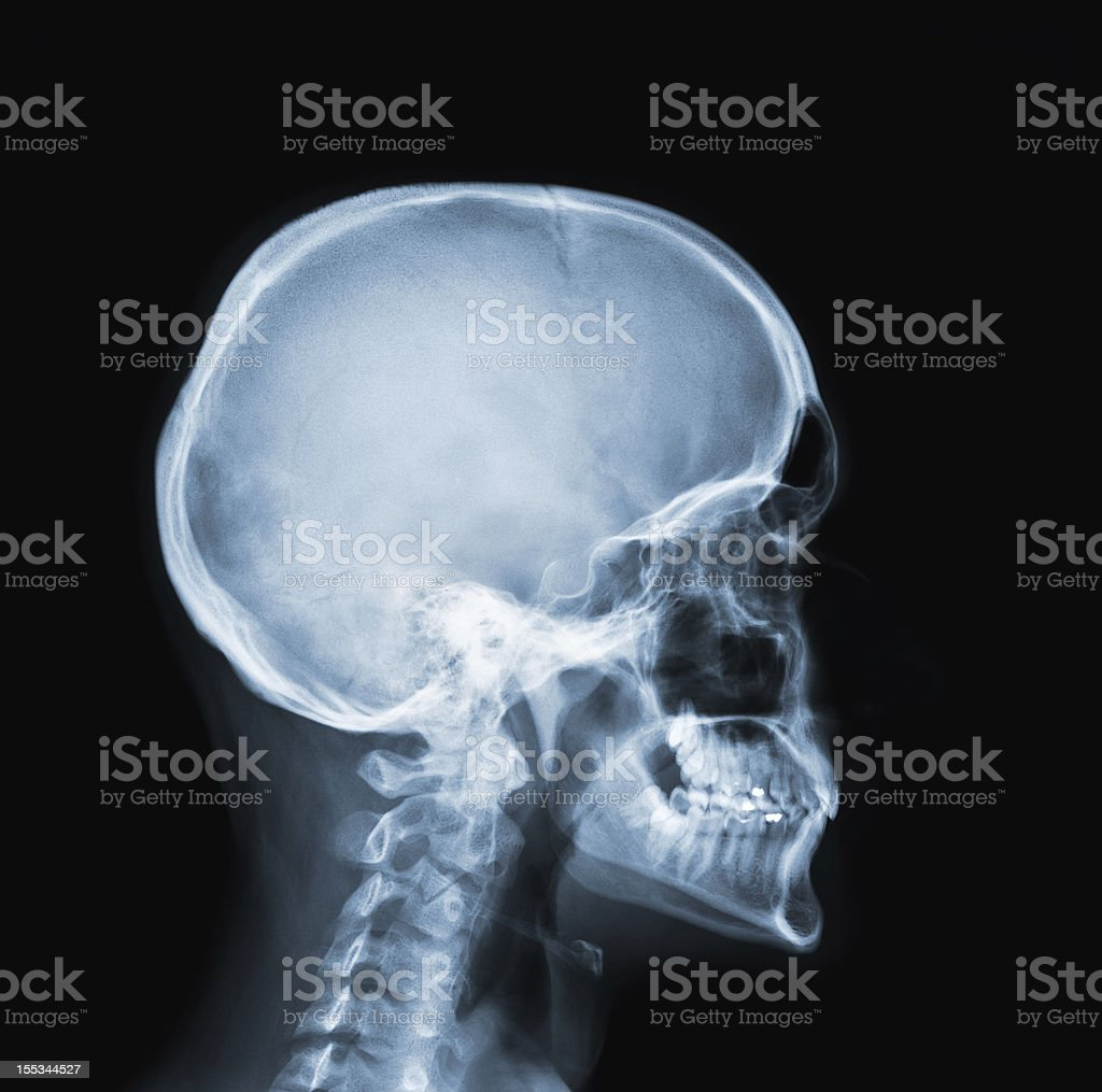 X-Ray photo of a human head and neck stock photo