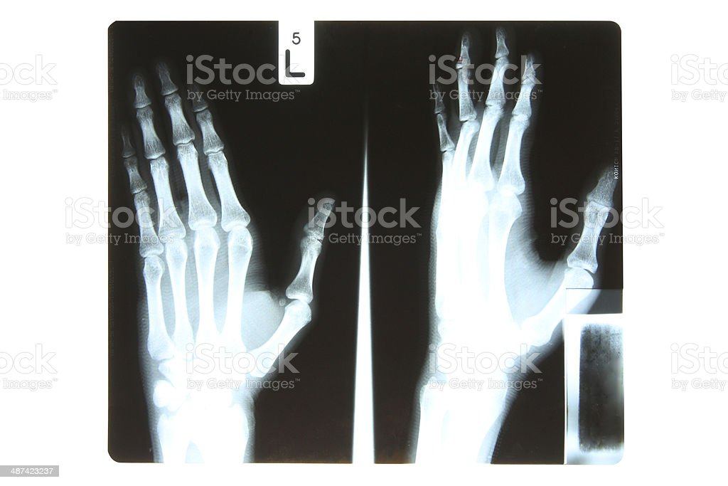 X-Ray royalty-free stock photo